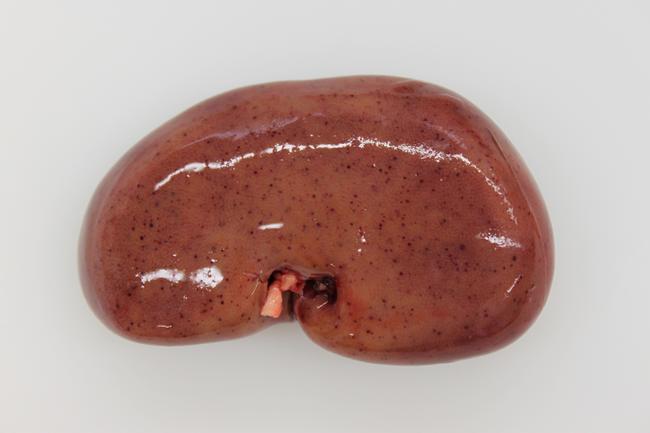 Merkmal am aufgebrochenen Stück: Einblutungen in die Niere (Quelle: FLI)